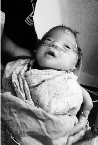 杨绪周怀中的孩子刚出生就因缺陷要接受治疗.图片