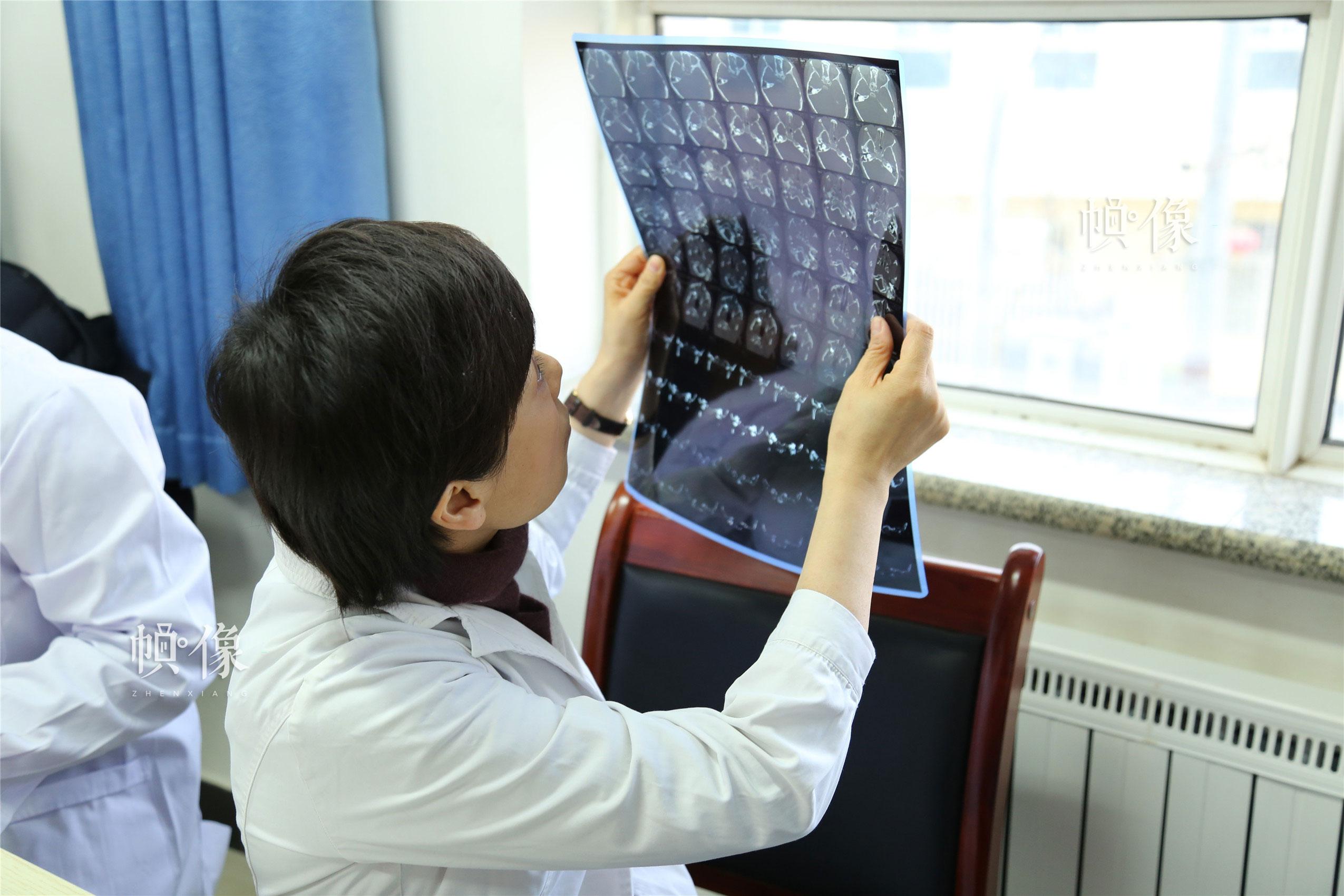 2018年1月21日,甘肃省陇南市西和县,首都医科大学附属北京儿童医院耳鼻咽喉头颈外科科主任、主任医师张杰在看片子。中国网实习记者 李逸奇 摄