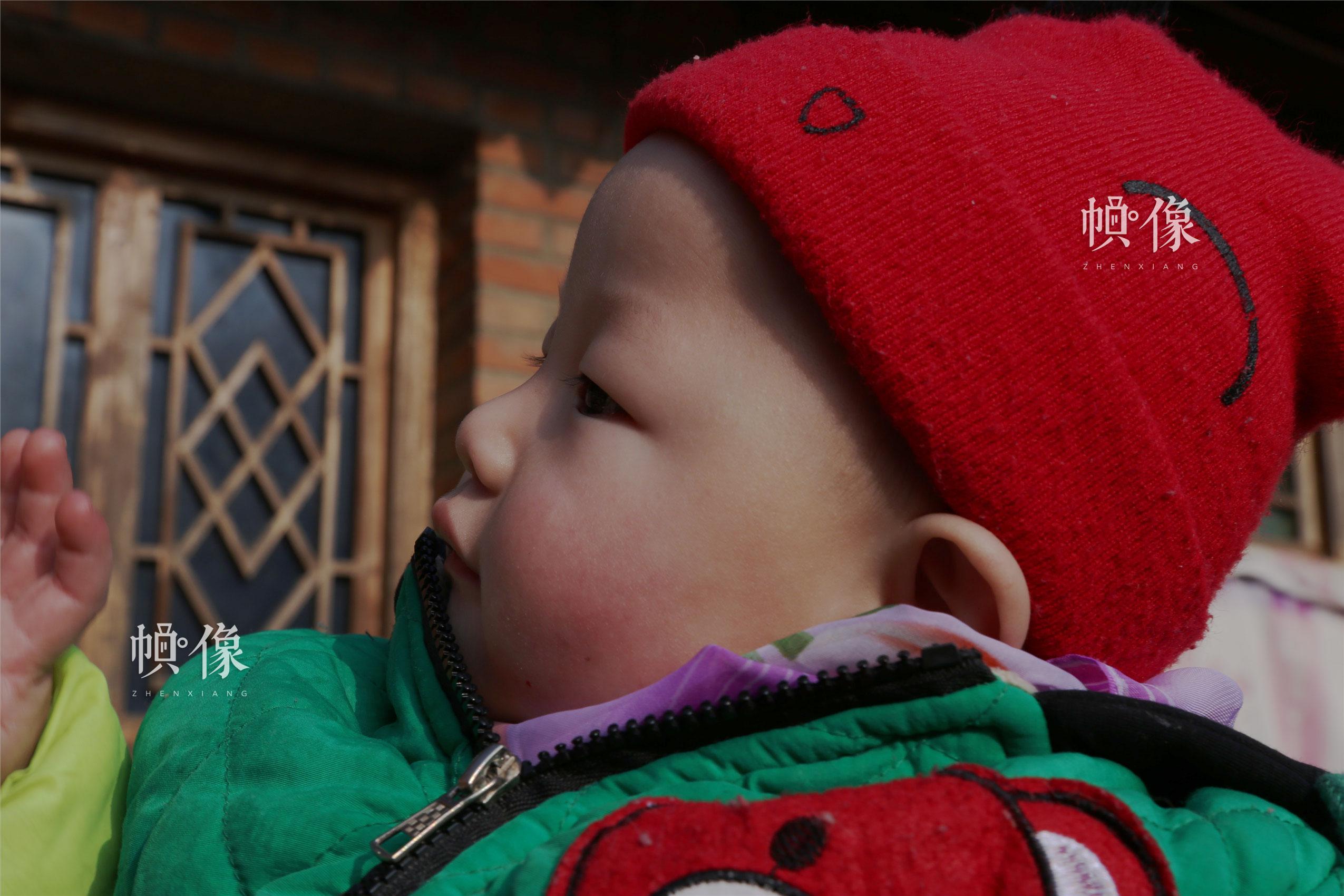 2018年1月22日,甘肃省陇南市西和县,潘小明有听力障碍的左耳。中国网实习记者 朱珊杉 摄