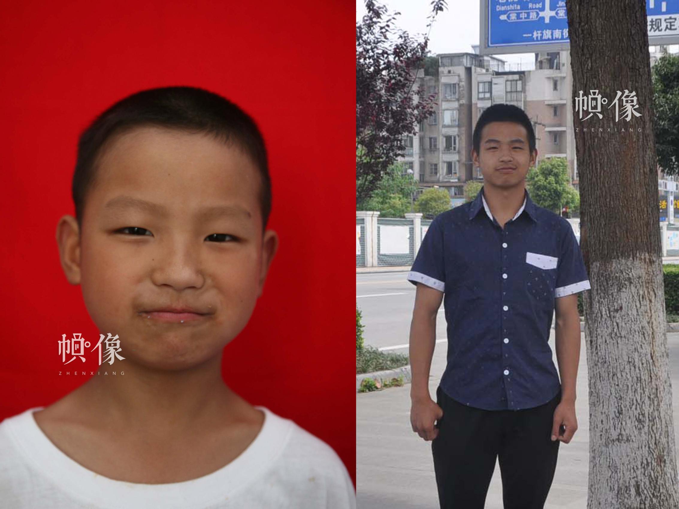 512地震孤兒小華(化名)10年前和現在的對比圖。汶川地震時小華才8歲,災難過後,失去雙親的小華來到了安康家園,現在在棠湖中學讀高二。安康家園供圖