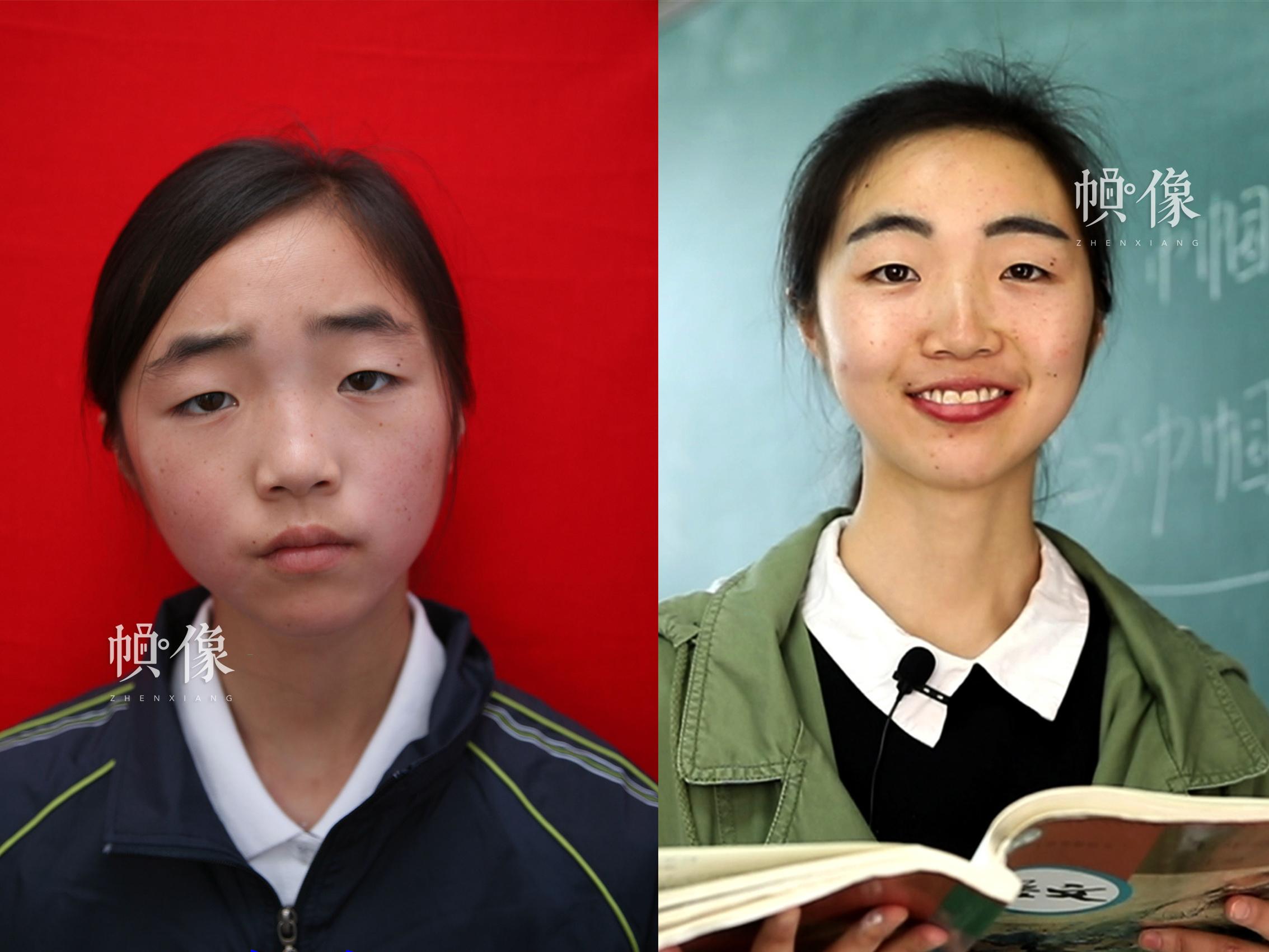 """512地震孤兒小玉(化名)10年前和現在的對比圖。小玉在""""安康家園""""生活了五年時間,如今她已經是四川省綿陽市某初中教師。安康家園供圖(左),祁 攝(右)"""
