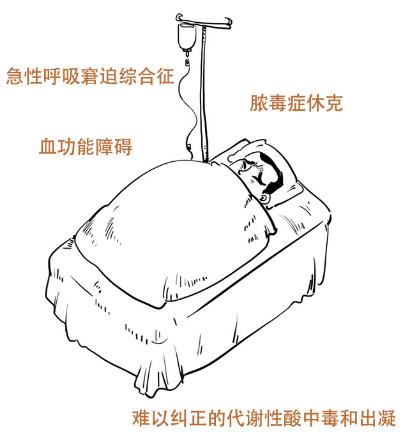 杭州旅游景点大全:最全新型冠状病毒熏染的肺炎疫情科普小知识 请收藏!